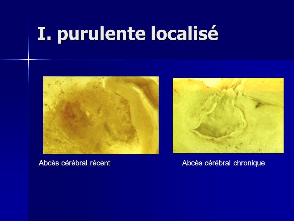 I. purulente localisé Abcès cérébral récentAbcès cérébral chronique