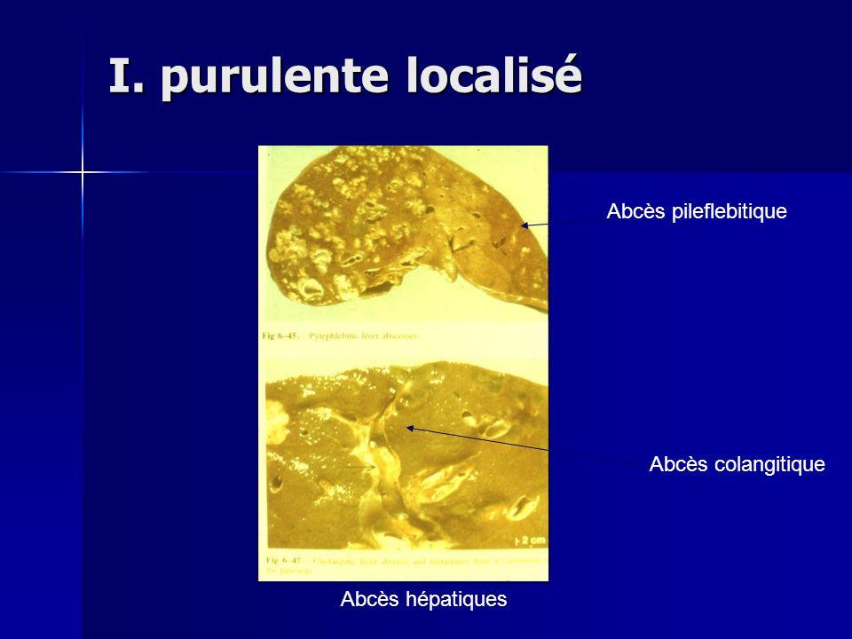 I. purulente localisé Abcès hépatiques Abcès pileflebitique Abcès colangitique