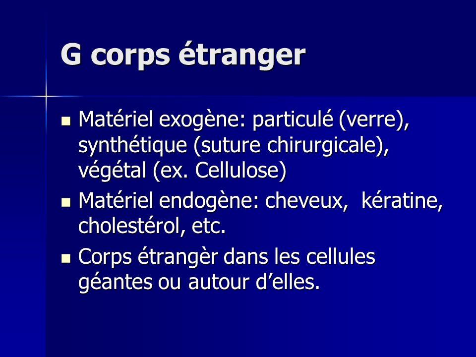 G corps étranger Matériel exogène: particulé (verre), synthétique (suture chirurgicale), végétal (ex. Cellulose) Matériel exogène: particulé (verre),