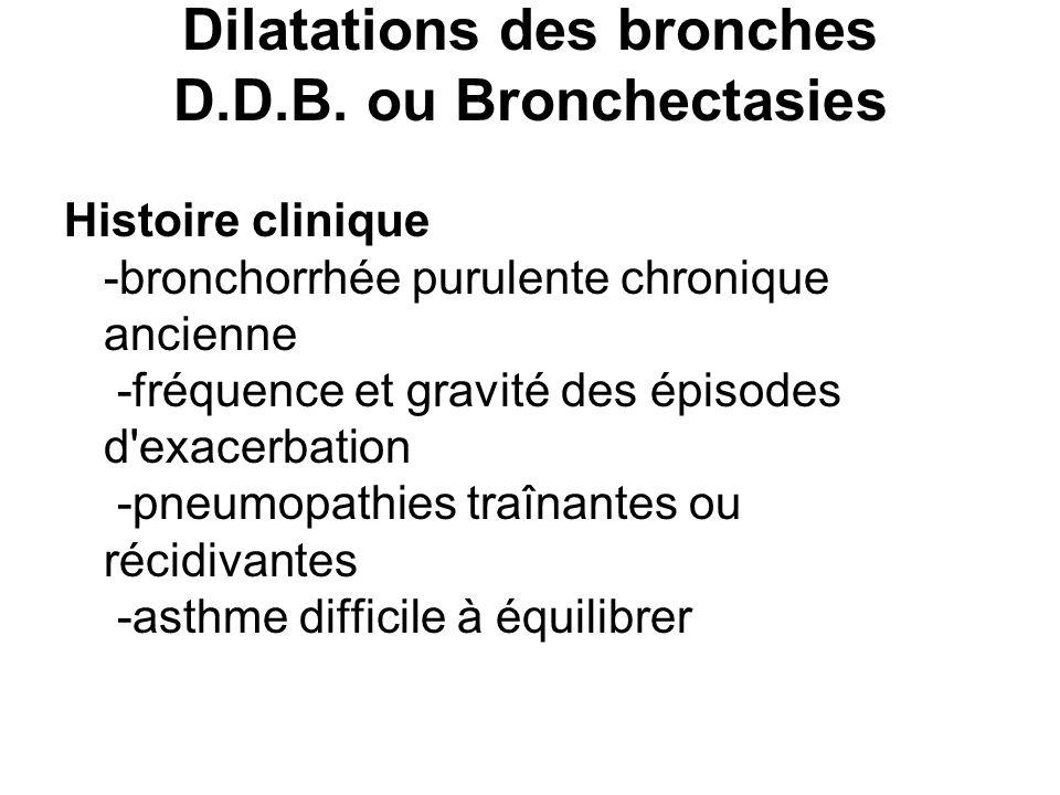 Dilatations des bronches D.D.B. ou Bronchectasies Histoire clinique -bronchorrhée purulente chronique ancienne -fréquence et gravité des épisodes d'ex
