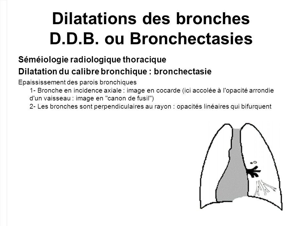 Dilatations des bronches D.D.B. ou Bronchectasies Séméiologie radiologique thoracique Dilatation du calibre bronchique : bronchectasie Epaississement
