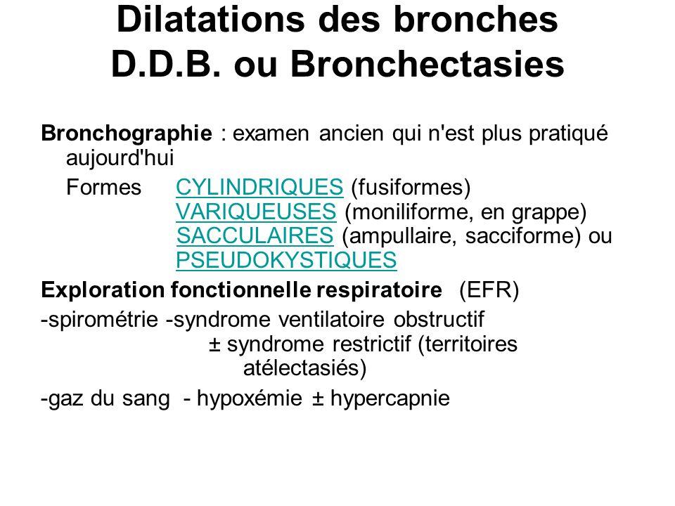 Dilatations des bronches D.D.B. ou Bronchectasies Bronchographie : examen ancien qui n'est plus pratiqué aujourd'hui FormesCYLINDRIQUES (fusiformes) V