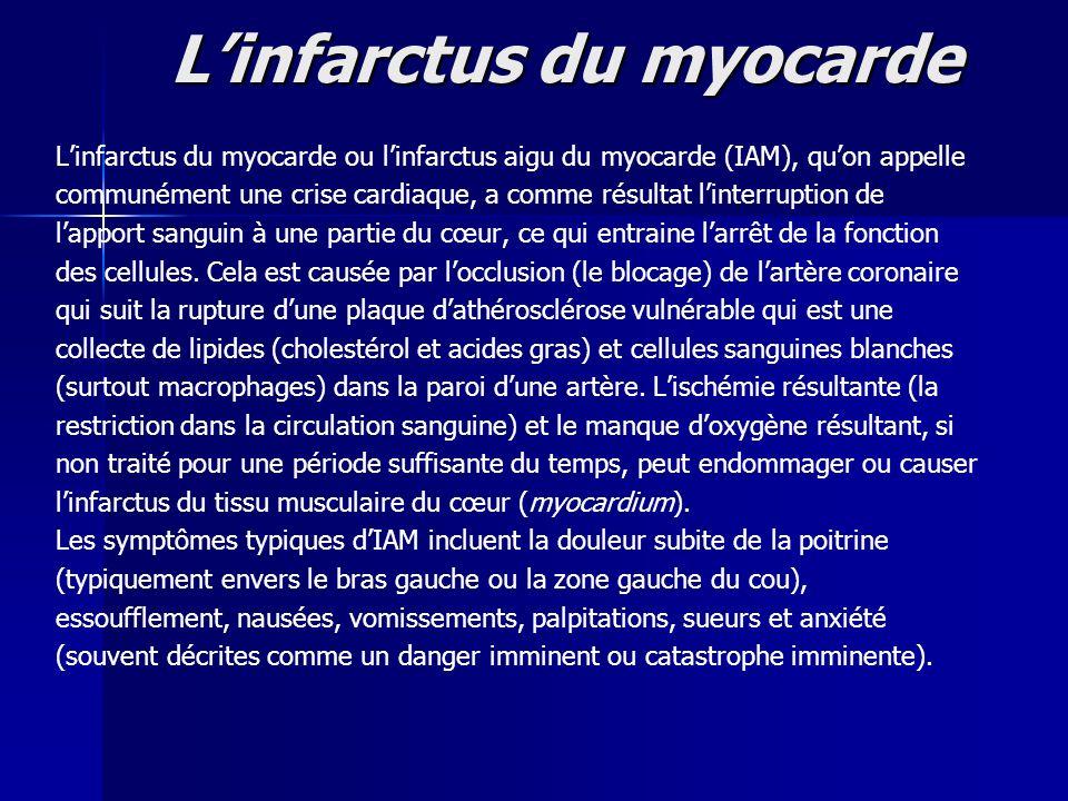 Linfarctus du myocarde Linfarctus du myocarde ou linfarctus aigu du myocarde (IAM), quon appelle communément une crise cardiaque, a comme résultat lin