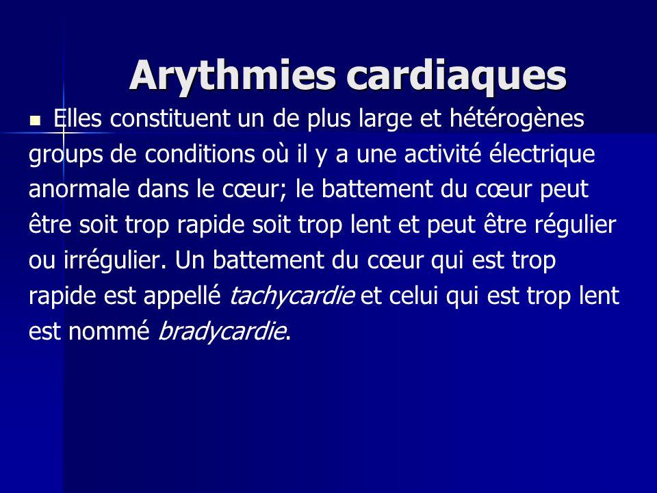 Arythmies cardiaques Elles constituent un de plus large et hétérogènes groups de conditions où il y a une activité électrique anormale dans le cœur; l