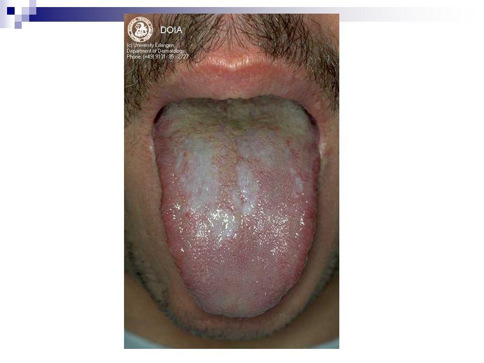 Lichen plan buccal érythémateux : lésions blanches masquées dun érythème important (dans le syndrome VVG).