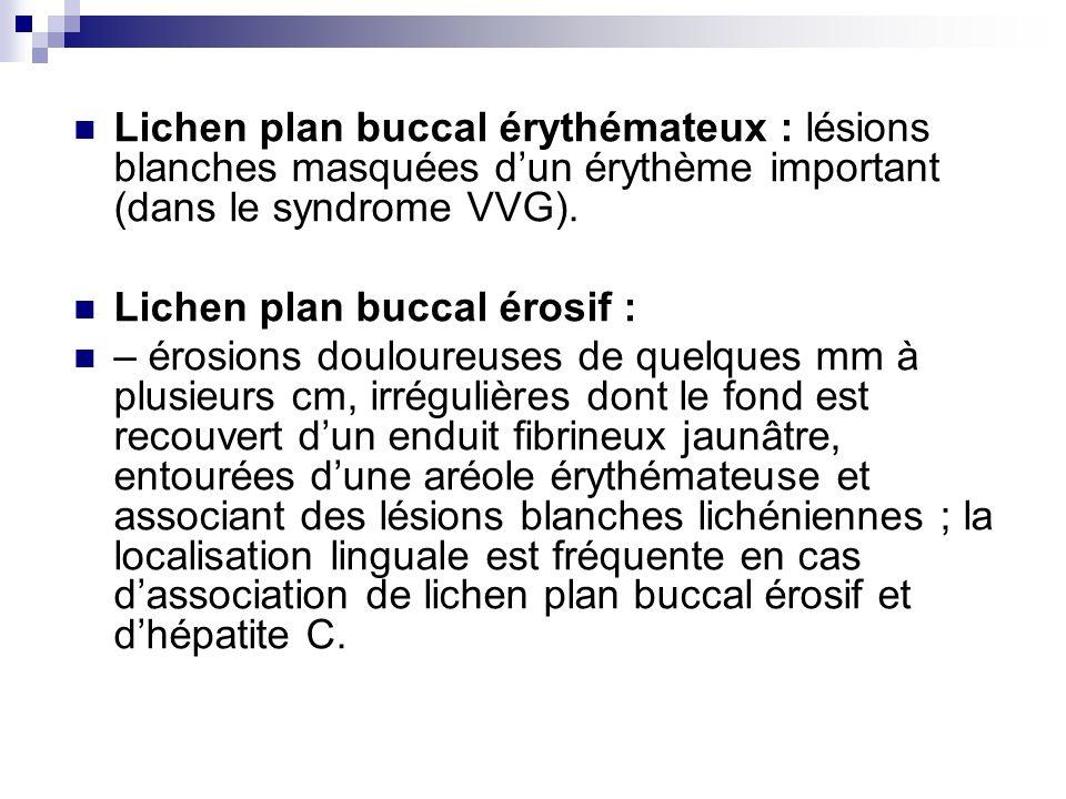 Lichen plan buccal érythémateux : lésions blanches masquées dun érythème important (dans le syndrome VVG). Lichen plan buccal érosif : – érosions doul