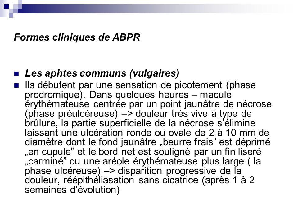 Formes cliniques de ABPR Les aphtes communs (vulgaires) Ils débutent par une sensation de picotement (phase prodromique). Dans quelques heures – macul