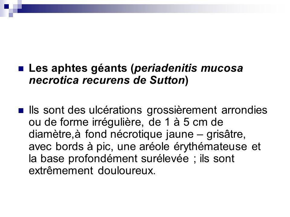 Une poussée daphtose géante comporte habituellement un seul élément ou moins de 5 aphtes qui siègent frequement sur les lèvres, dans la région réthrocommissurale, dans la loge amygdalienne, sur le voile et les piliers.