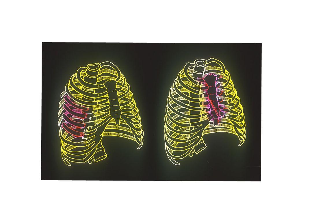 LÉSIONS PARIÉTALES Fractures de côtes Fracture 1ère côte : facteur gravité-violence, syndrome du défilé thoraco-brachial Fractures basses : + associat