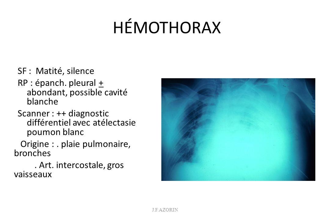 PNEUMOTHORAX SF : Tympanisme, silence R P : poumon + décollé Pneumothorax suffocant drainage urgent Scanner : ++ si association hémothorax, contusion