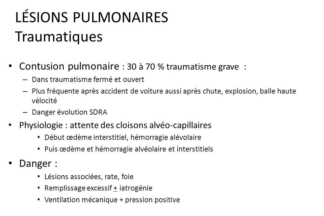 LÉSIONS PULMONAIRES Radio : – Lacération (plaies, fracture côte) – Contusion pulmonaire ( infiltrat alvéolaire ) « 30 à 40 % trauma grave » – Hématome