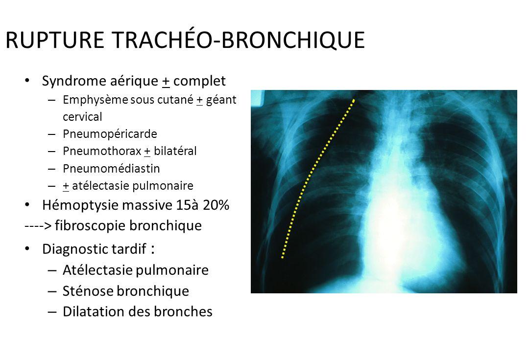 RUPTURE TRACHÉO-BRONCHIQUE 3.5 % des traumatismes thoraciques graves : – Sujet jeune – Décélération importante – Compression thoracique + fréquente ia