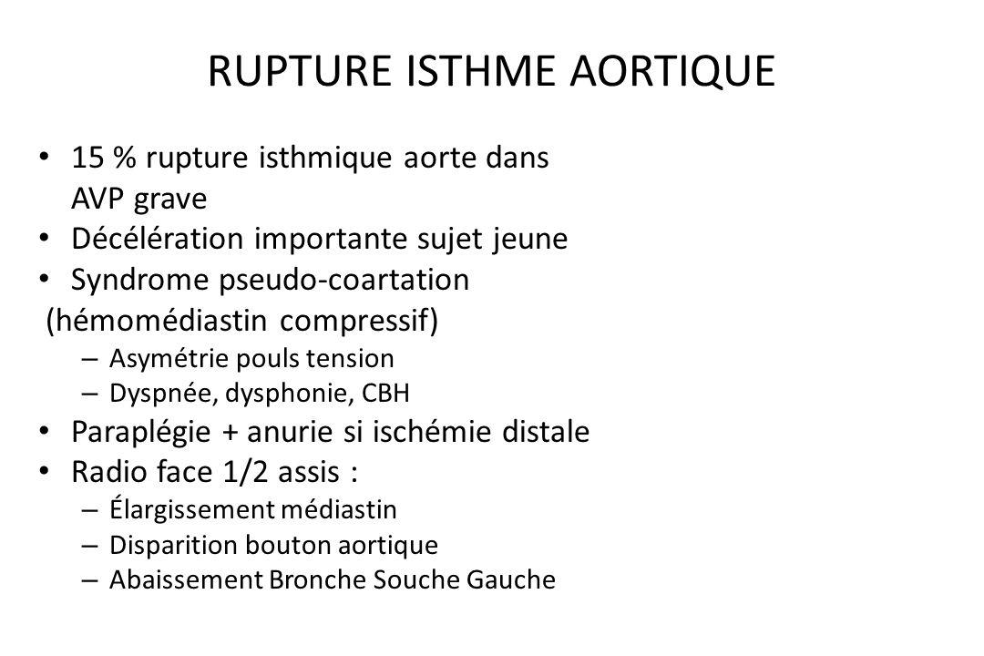 TRAUMATISME CARDIAQUE Rare dans trauma fermé souvent latéral Plus fréquent dans plaie thoracique Hémopéricarde : - tamponnade - jugulaire turgescente