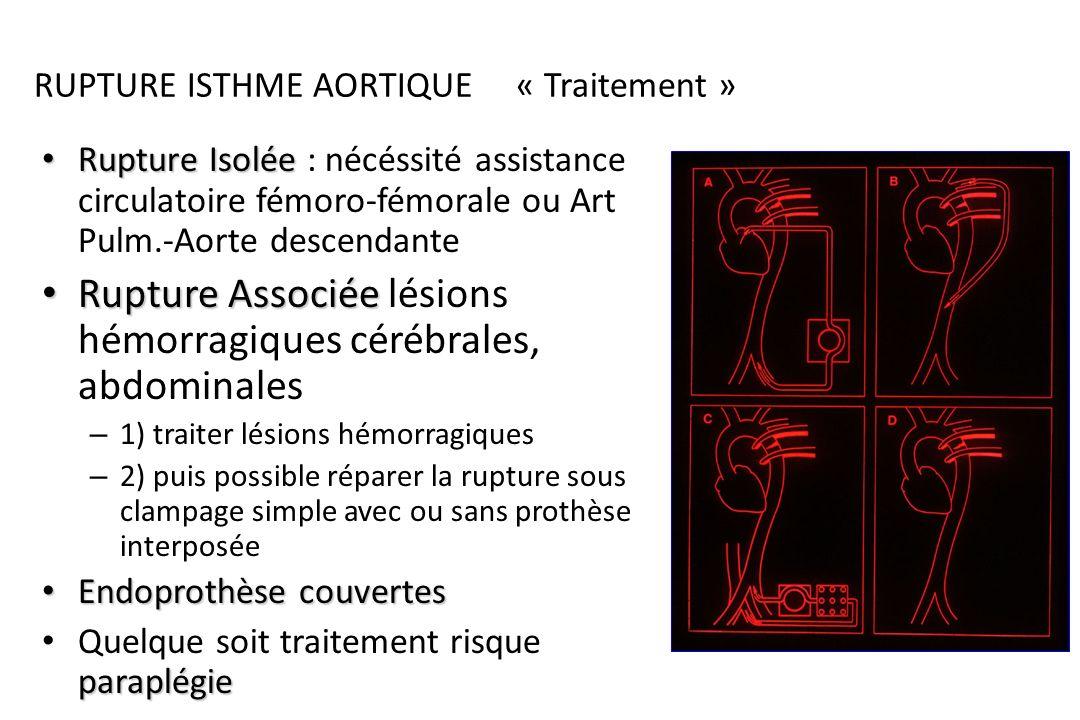 Rupture Isthme Aortique Radio pulmonaire: – Élargissement médiastinal – hémothorax Angioscanner : – Élargissement isthme – + image dissection – Hémomé