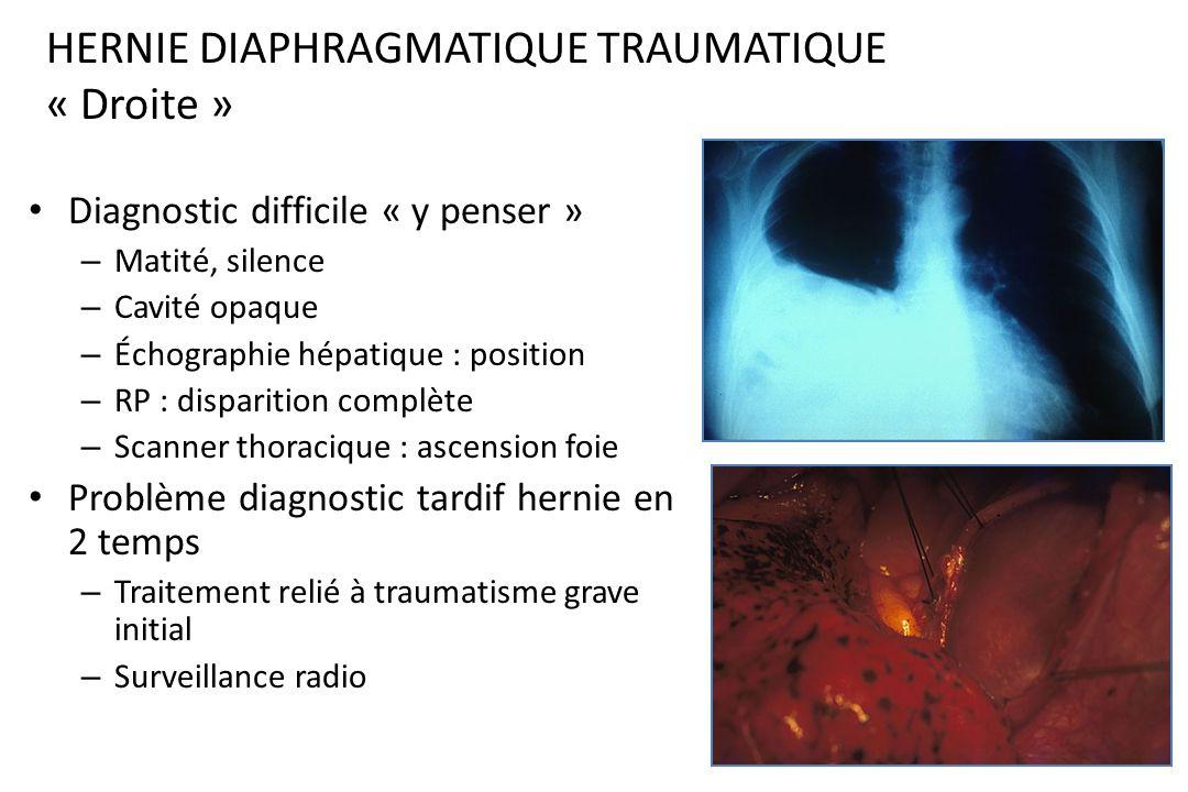 HERNIE DIAPHRAGMATIQUE TRAUMATIQUE « Gauche » Signes digestifs + respiratoires – Bruits hydroaériques – Dysphagie – Niveau liquidien – + hémo-pneumoth
