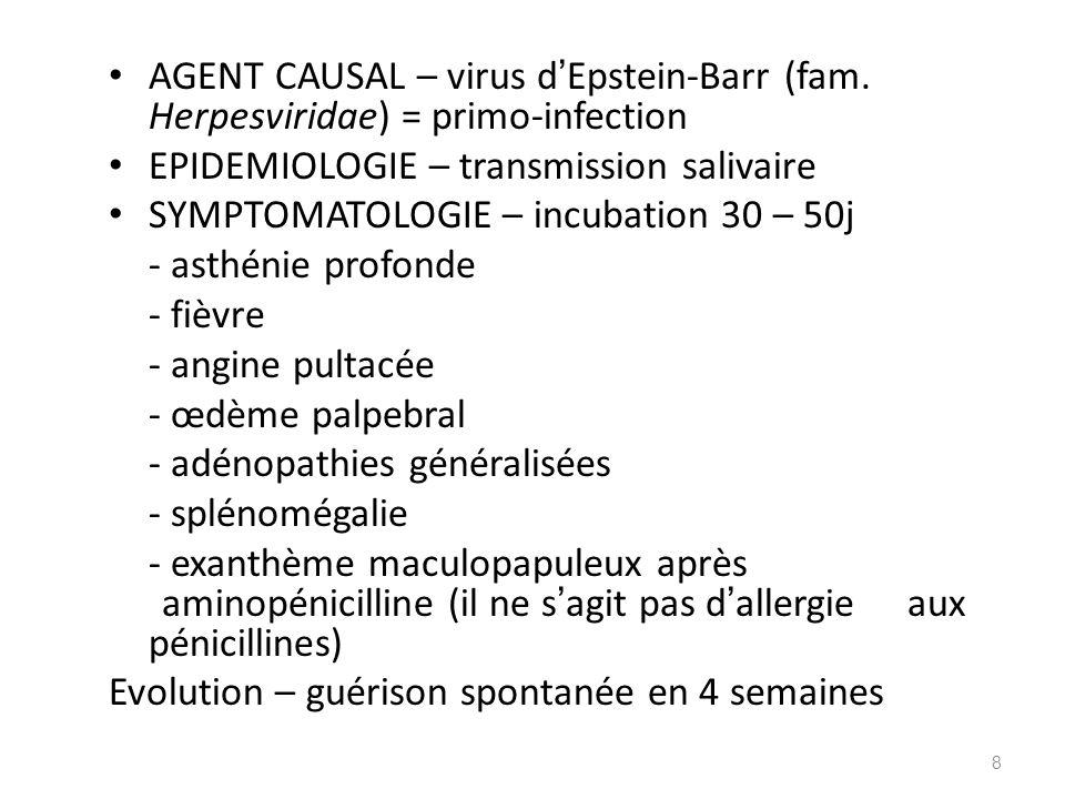 AGENT CAUSAL – virus d Epstein-Barr (fam. Herpesviridae) = primo-infection EPIDEMIOLOGIE – transmission salivaire SYMPTOMATOLOGIE – incubation 30 – 50