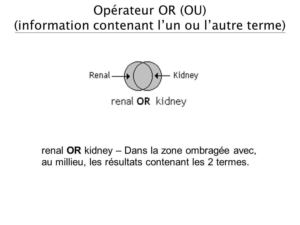 Opérateur OR (OU) (information contenant lun ou lautre terme) renal OR kidney – Dans la zone ombragée avec, au millieu, les résultats contenant les 2