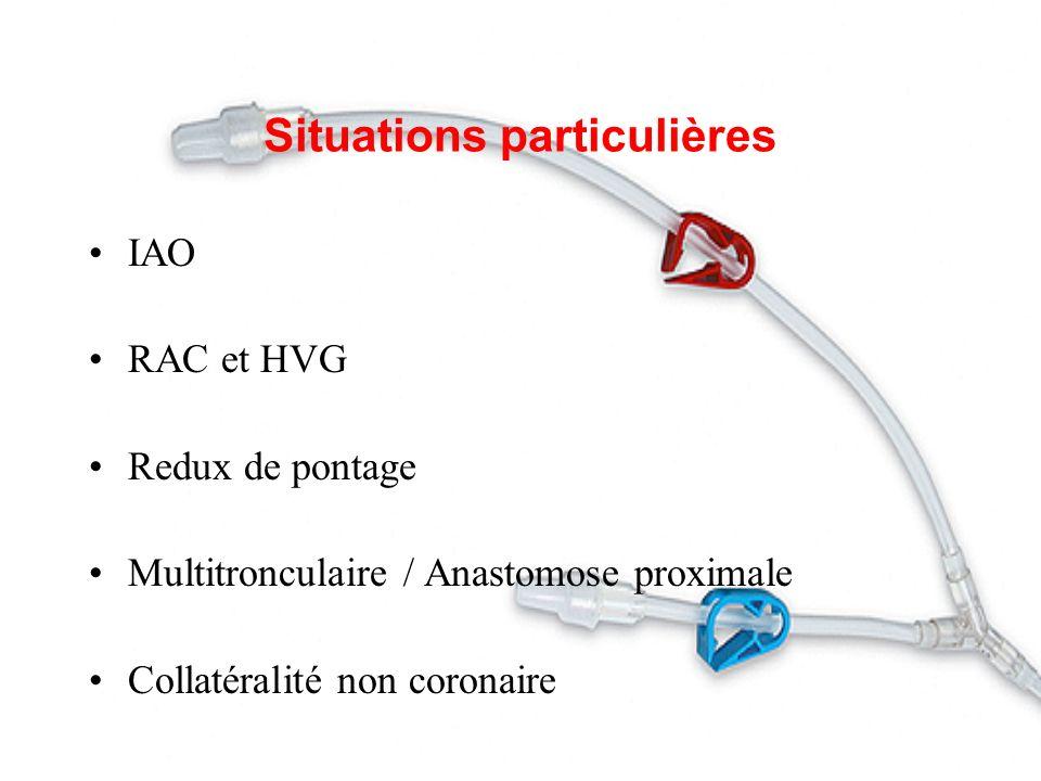 Situations particulières IAO RAC et HVG Redux de pontage Multitronculaire / Anastomose proximale Collatéralité non coronaire