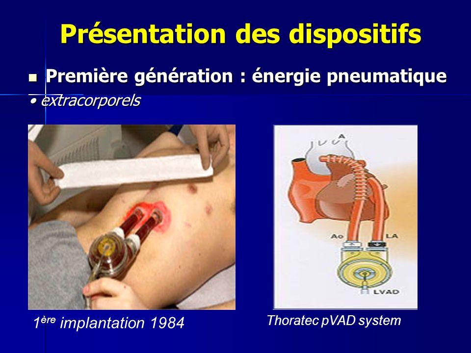 Présentation des dispositifs Première génération : énergie pneumatique Première génération : énergie pneumatique extracorporels extracorporels Thoratec pVAD system 1 ère implantation 1984