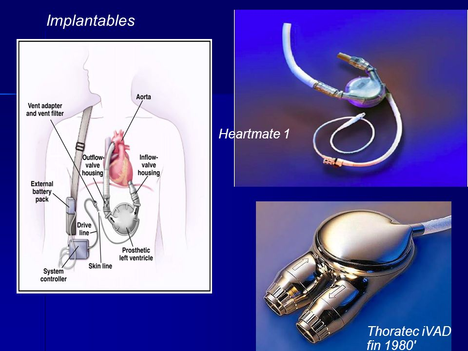 Heartmate 1 Thoratec iVAD fin 1980 Implantables
