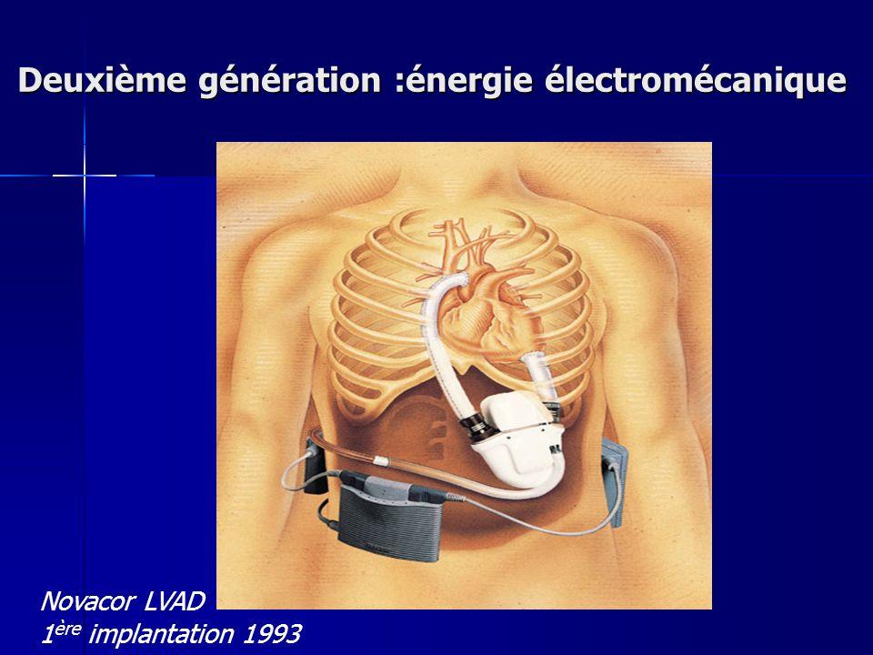 Deuxième génération :énergie électromécanique Novacor LVAD 1 ère implantation 1993