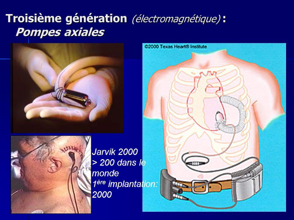 Troisième génération (électromagnétique) : Pompes axiales Troisième génération (électromagnétique) : Pompes axiales Jarvik 2000 > 200 dans le monde 1 ère implantation: 2000