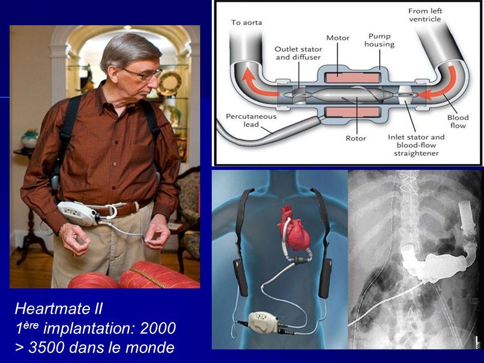Heartmate II 1 ère implantation: 2000 > 3500 dans le monde