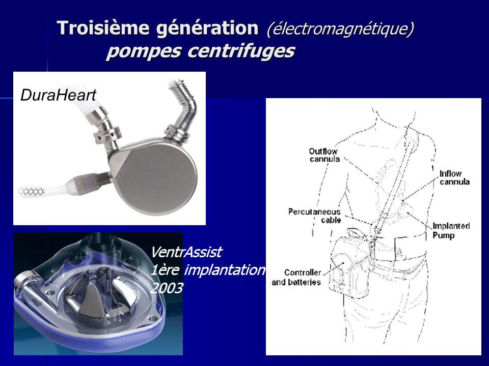 Troisième génération (électromagnétique) pompes centrifuges VentrAssist 1ère implantation 2003 DuraHeart