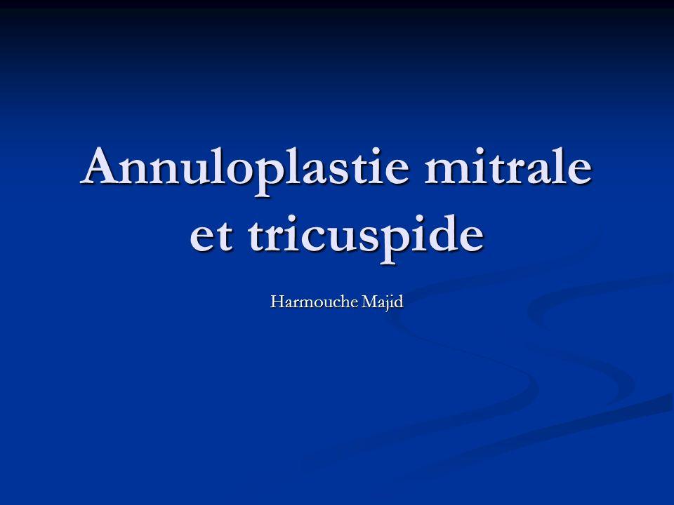 Annuloplastie mitrale et tricuspide Harmouche Majid