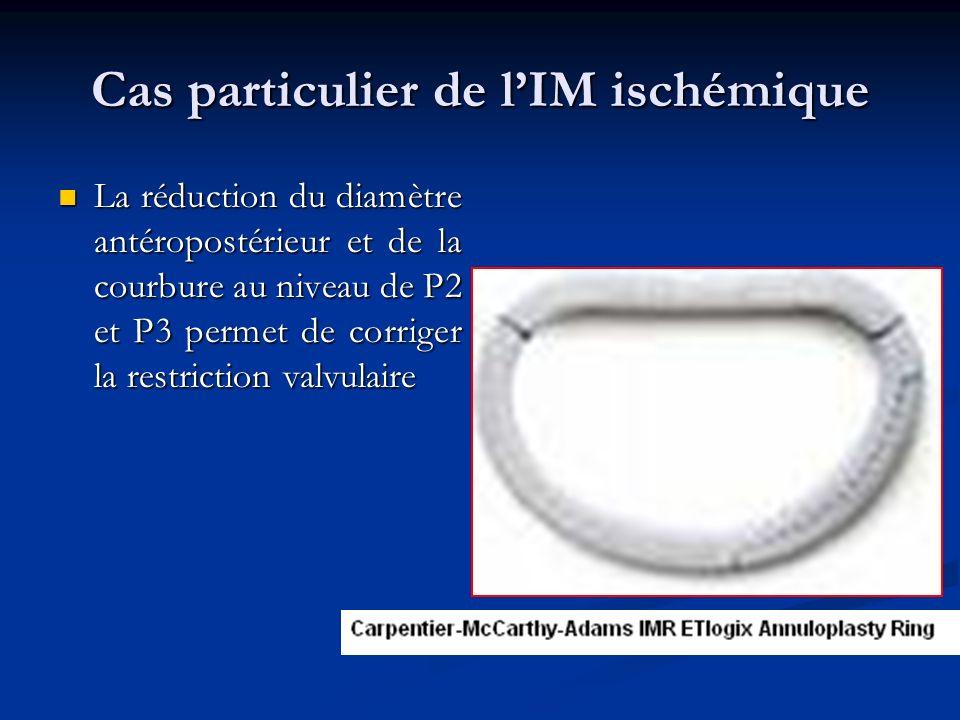 Cas particulier de lIM ischémique La réduction du diamètre antéropostérieur et de la courbure au niveau de P2 et P3 permet de corriger la restriction valvulaire La réduction du diamètre antéropostérieur et de la courbure au niveau de P2 et P3 permet de corriger la restriction valvulaire