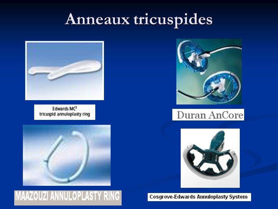 Anneaux tricuspides