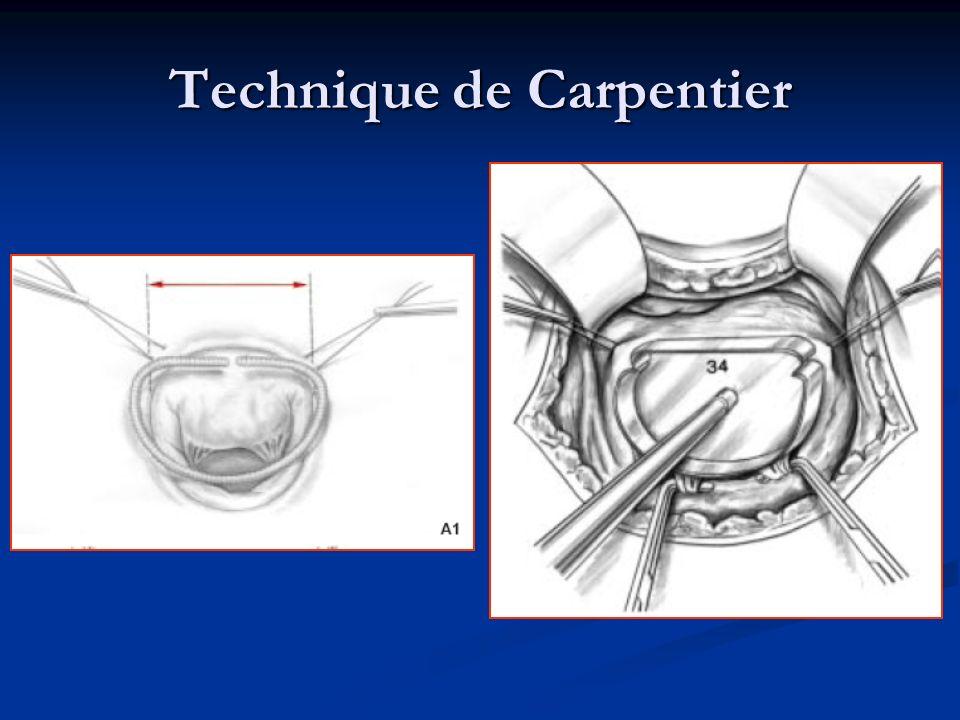 Technique de Carpentier