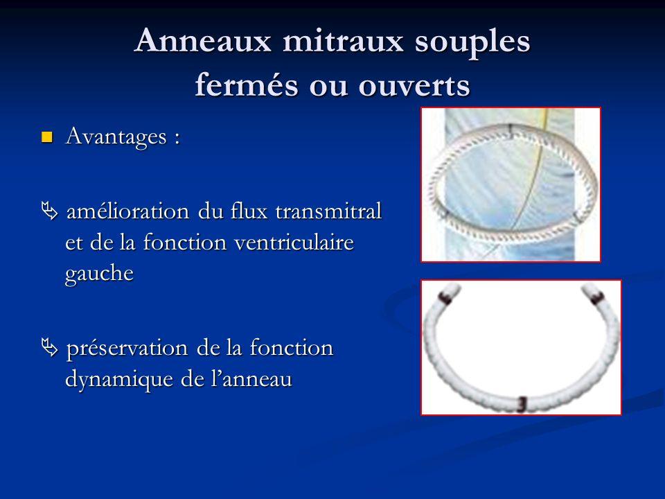 Anneaux mitraux péricardiques Meilleure dynamique annulaire mitrale