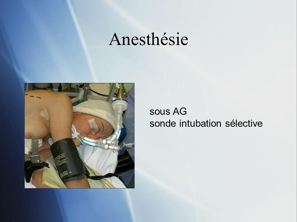 Anesthésie sous AG sonde intubation sélective