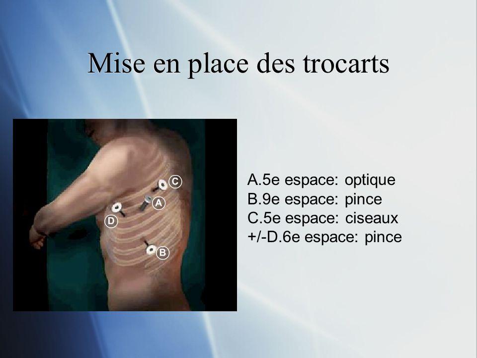 Mise en place des trocarts A.5e espace: optique B.9e espace: pince C.5e espace: ciseaux +/-D.6e espace: pince