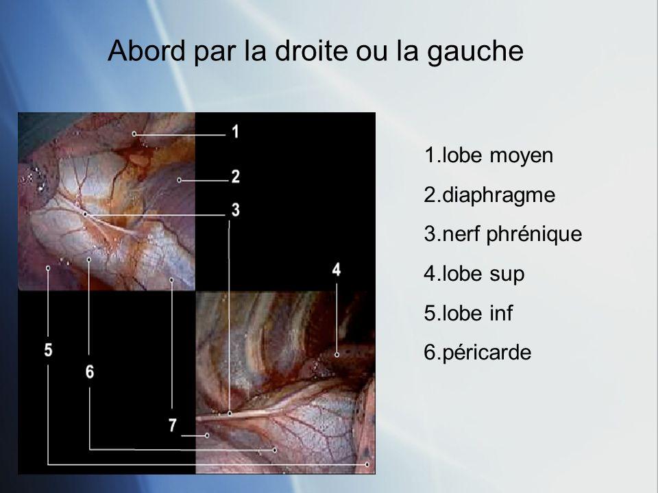 Abord par la droite ou la gauche 1.lobe moyen 2.diaphragme 3.nerf phrénique 4.lobe sup 5.lobe inf 6.péricarde