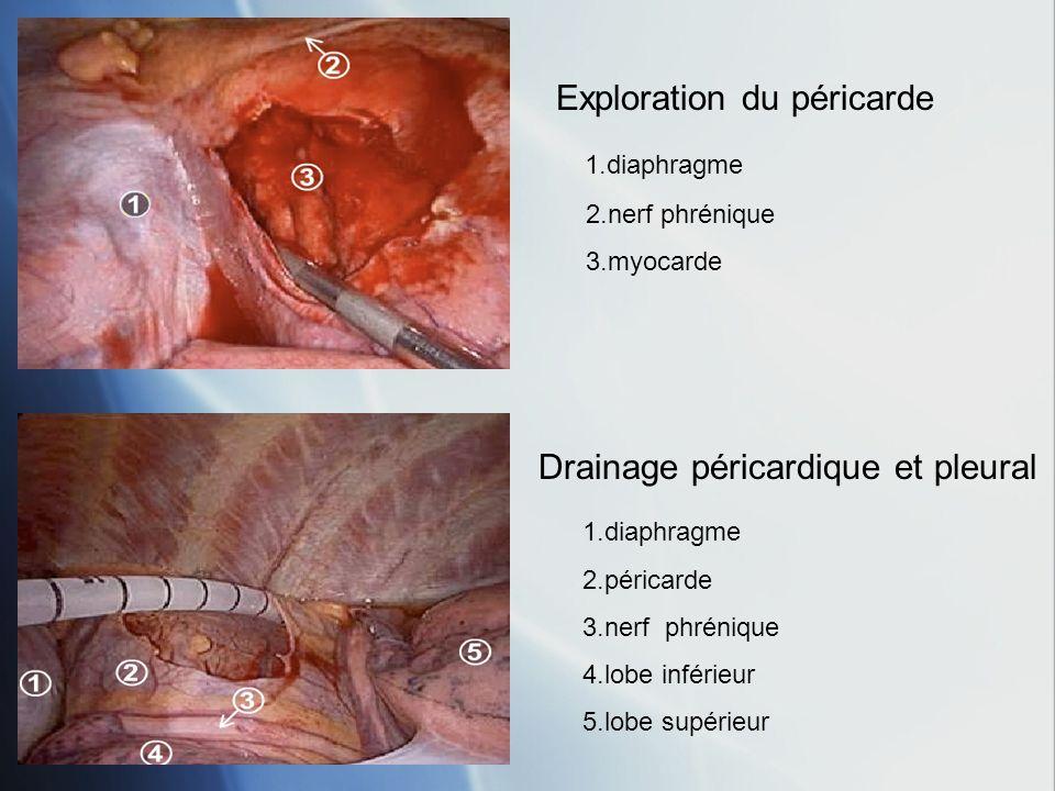 1.diaphragme 2.péricarde 3.nerf phrénique 4.lobe inférieur 5.lobe supérieur Drainage péricardique et pleural Exploration du péricarde 1.diaphragme 2.nerf phrénique 3.myocarde