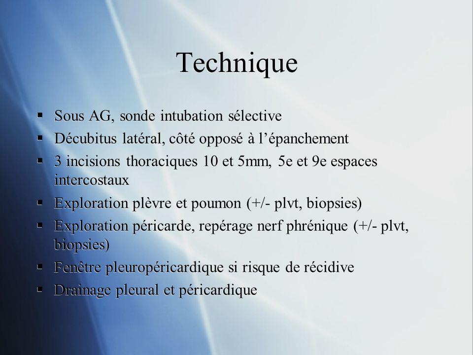 Technique Sous AG, sonde intubation sélective Décubitus latéral, côté opposé à lépanchement 3 incisions thoraciques 10 et 5mm, 5e et 9e espaces intercostaux Exploration plèvre et poumon (+/- plvt, biopsies) Exploration péricarde, repérage nerf phrénique (+/- plvt, biopsies) Fenêtre pleuropéricardique si risque de récidive Drainage pleural et péricardique Sous AG, sonde intubation sélective Décubitus latéral, côté opposé à lépanchement 3 incisions thoraciques 10 et 5mm, 5e et 9e espaces intercostaux Exploration plèvre et poumon (+/- plvt, biopsies) Exploration péricarde, repérage nerf phrénique (+/- plvt, biopsies) Fenêtre pleuropéricardique si risque de récidive Drainage pleural et péricardique