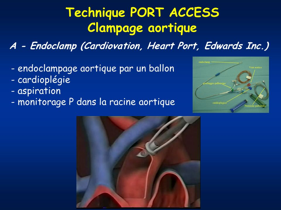 Technique PORT ACCESS Clampage aortique A - Endoclamp (Cardiovation, Heart Port, Edwards Inc.) - endoclampage aortique par un ballon - cardioplégie - aspiration - monitorage P dans la racine aortique