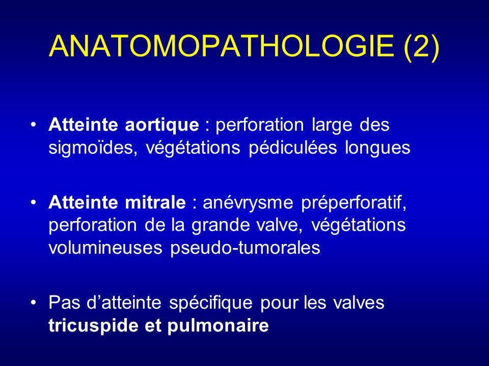 ANATOMOPATHOLOGIE (2) Atteinte aortique : perforation large des sigmoïdes, végétations pédiculées longues Atteinte mitrale : anévrysme préperforatif,