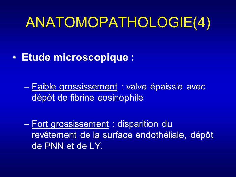 ANATOMOPATHOLOGIE(4) Etude microscopique : –Faible grossissement : valve épaissie avec dépôt de fibrine eosinophile –Fort grossissement : disparition