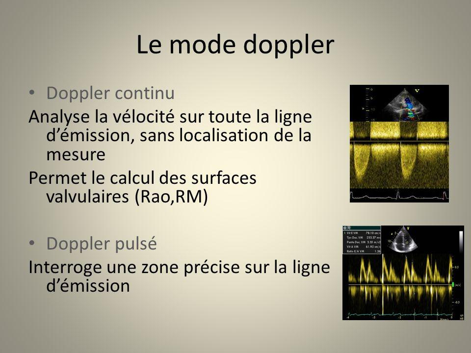 Le mode doppler Doppler continu Analyse la vélocité sur toute la ligne démission, sans localisation de la mesure Permet le calcul des surfaces valvula