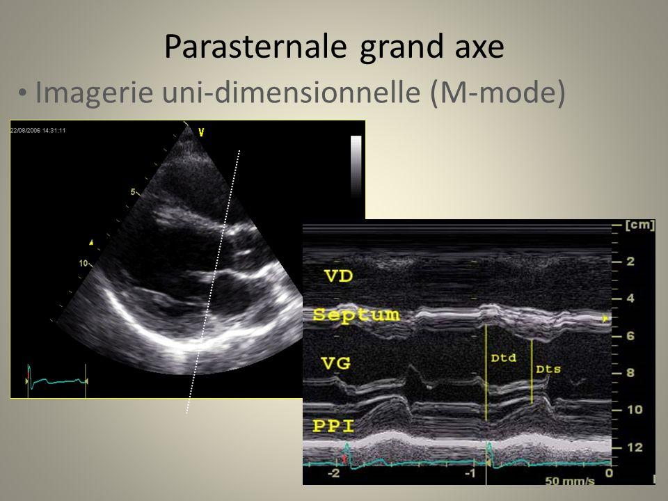 Parasternale grand axe Imagerie uni-dimensionnelle (M-mode)