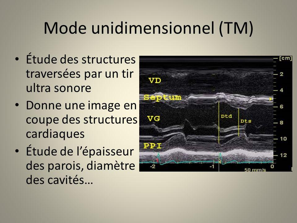 Mode unidimensionnel (TM) Étude des structures traversées par un tir ultra sonore Donne une image en coupe des structures cardiaques Étude de lépaisse