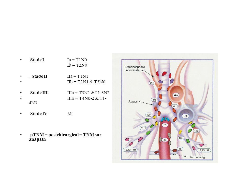 Stade IIa = T1N0 Ib = T2N0 - Stade IIIIa = T1N1 IIb = T2N1 & T3N0 Stade IIIIIIa = T3N1 &T1-3N2 IIIb = T4N0-2 & T1- 4N3 Stade IVM pTNM = postchirurgical = TNM sur anapath