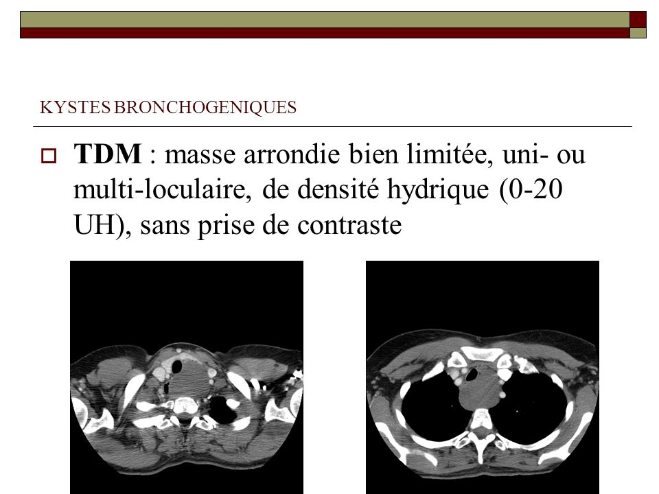 KYSTES BRONCHOGENIQUES TDM : masse arrondie bien limitée, uni- ou multi-loculaire, de densité hydrique (0-20 UH), sans prise de contraste