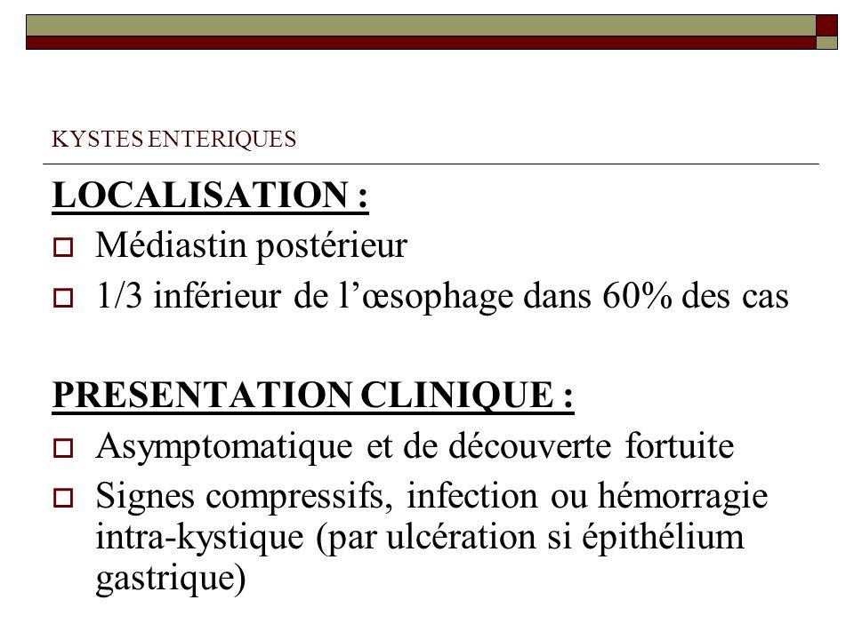 KYSTES ENTERIQUES LOCALISATION : Médiastin postérieur 1/3 inférieur de lœsophage dans 60% des cas PRESENTATION CLINIQUE : Asymptomatique et de découve