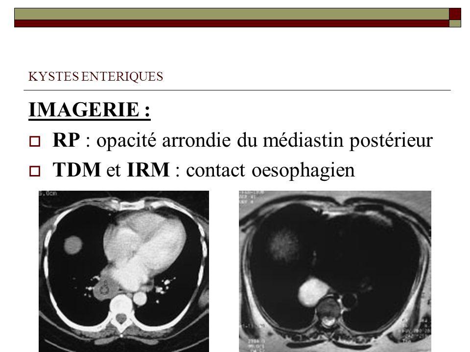KYSTES ENTERIQUES IMAGERIE : RP : opacité arrondie du médiastin postérieur TDM et IRM : contact oesophagien