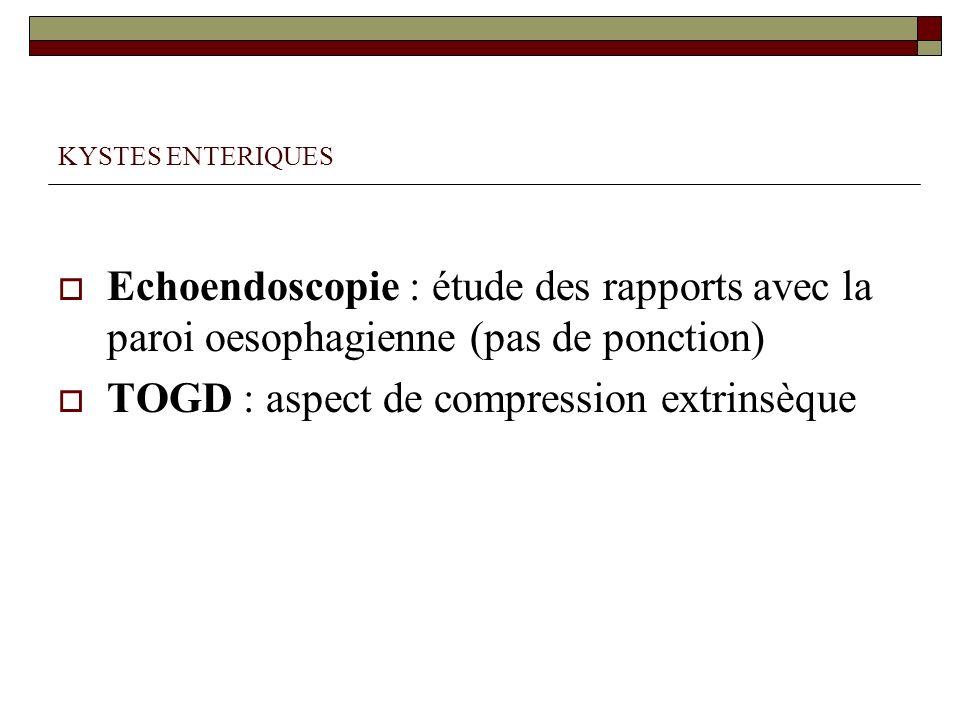 KYSTES ENTERIQUES Echoendoscopie : étude des rapports avec la paroi oesophagienne (pas de ponction) TOGD : aspect de compression extrinsèque