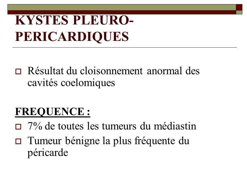 KYSTES PLEURO- PERICARDIQUES Résultat du cloisonnement anormal des cavités coelomiques FREQUENCE : 7% de toutes les tumeurs du médiastin Tumeur bénign